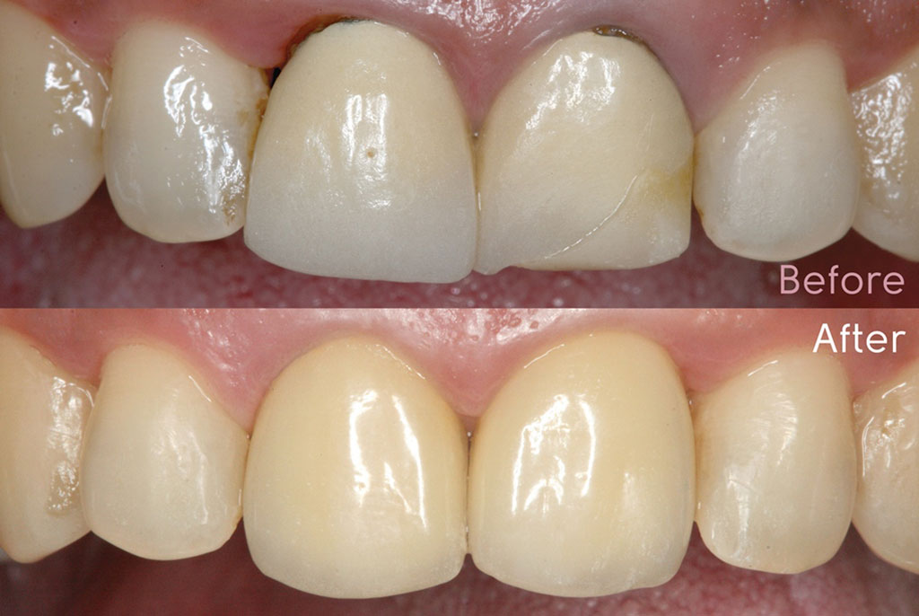 Dr Ben Lee for ADA Mastering-Anterior-Crowns