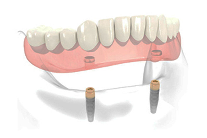 Implants Secured Dentures