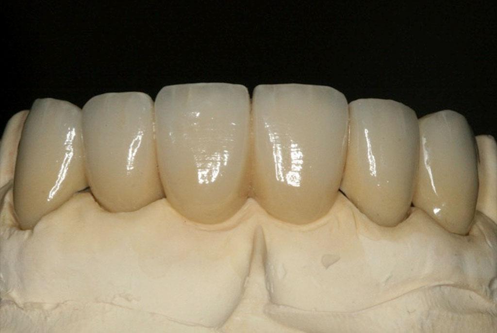 Dental Bridge Design