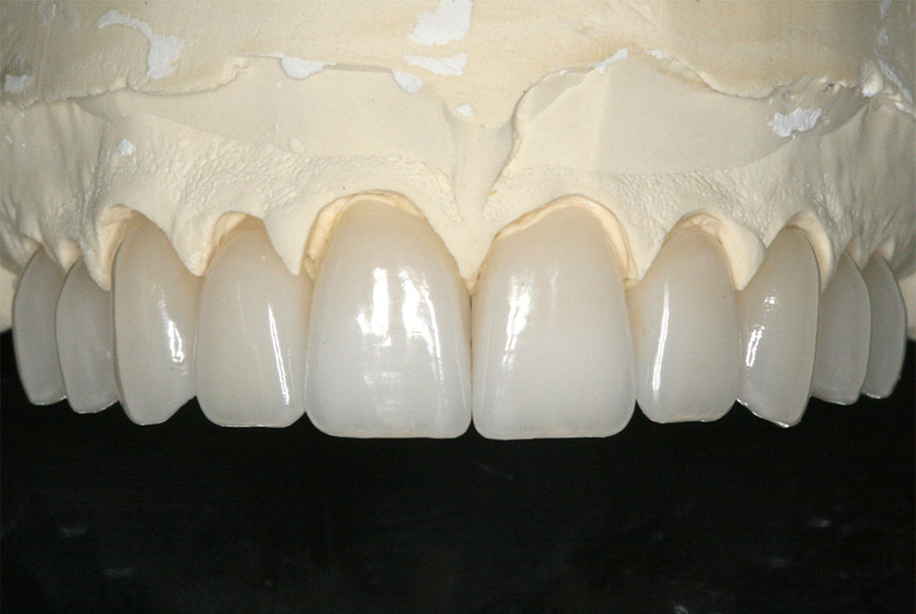 Dental Ceramic Update