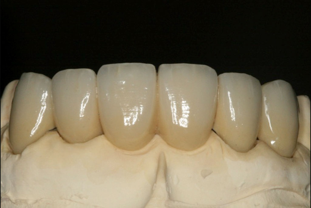 Contemporary Dental Bridges