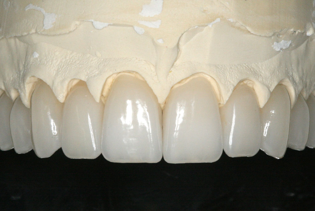 Rationale Implant Prosthesis